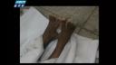টেকনাফে 'বন্দুকযুদ্ধে' রোহিঙ্গাসহ নিহত ৩ (ভিডিও)