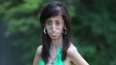 'পৃথিবীর কুৎসিততম নারী'র সৌন্দর্যমন্ডিত জয়