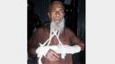 ভরণপোষণ চাওয়ায় আশি-ঊর্ধ্ব বাবার দু'হাত ভেঙ্গে দিল ছেলে