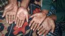 আঙ্গুলে ছাপ না থাকায় চরম বিড়ম্বনায় ৬ সদস্যের পরিবার