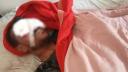 শরণখোলায় যুবকের পা ভেঙ্গে চোখ উপড়ে দিল দুর্বৃত্তরা